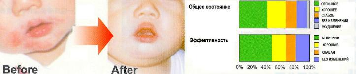 Экстракт периллы против аллергии на пыльцу и дерматита.